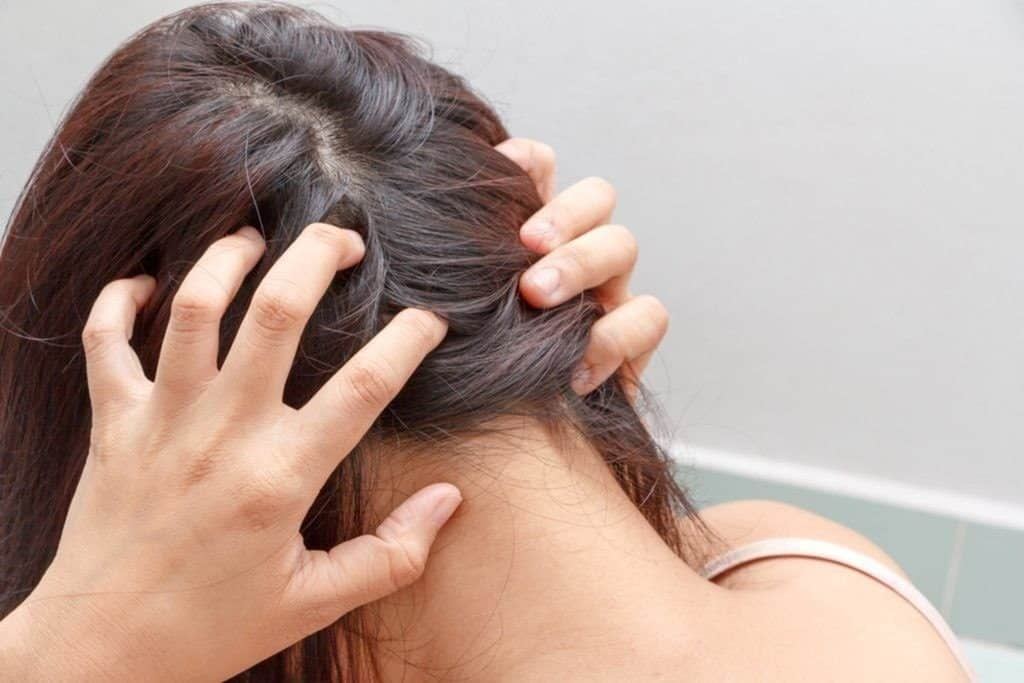 Remedies for Oily and Dry Scalps